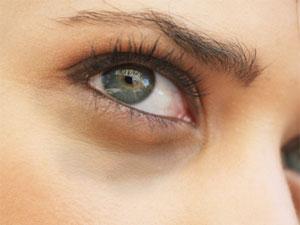 yeux cernés