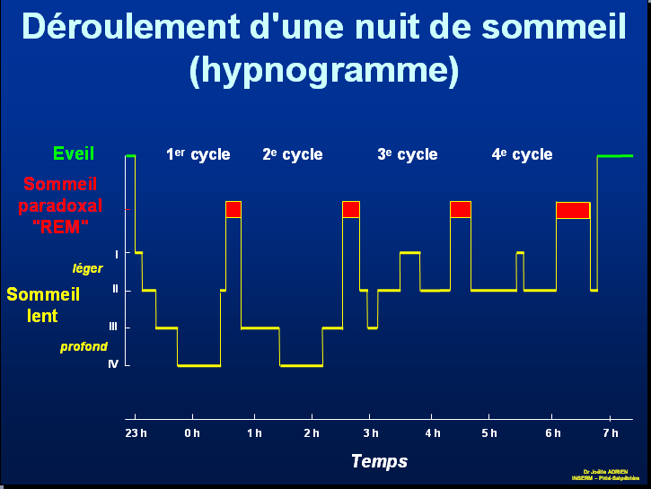 cycle-du-sommeil-hypnogramme