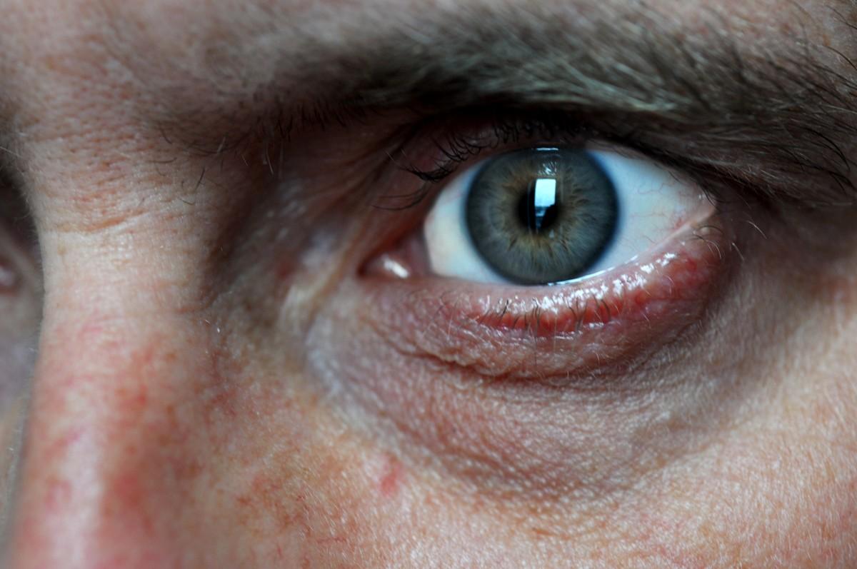 Le sérum contre les cercles sombres et les sacs sous les yeux
